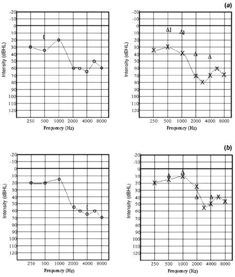 Audiogram before (a) and after (b) treatment