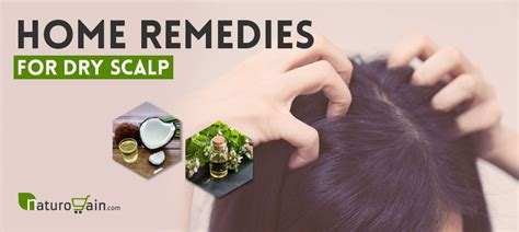 home-remedies-to-get-rid-of-dry-scalp