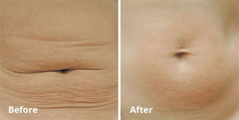 Forma Treatment For Sagging Skin   St